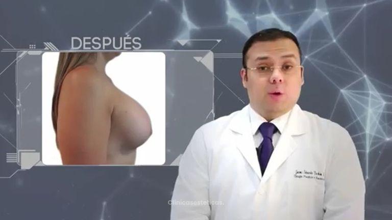 Explicación aumento mamario